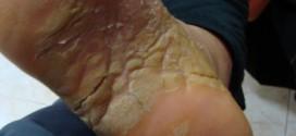Keratodermie palmo plantaire