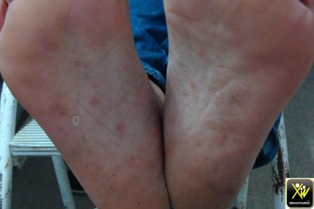 Plaques d'alopécie et lésions palmo plantaires
