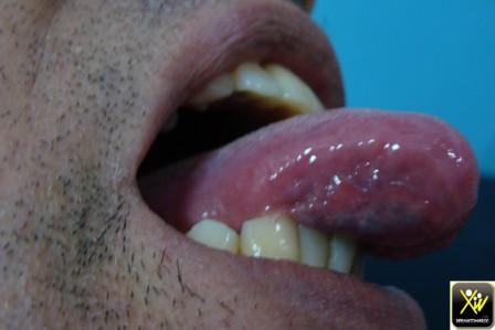 Syphilis secondaire 24021606 (Copier)