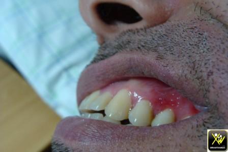 Syphilis secondaire 24021610 (Copier)