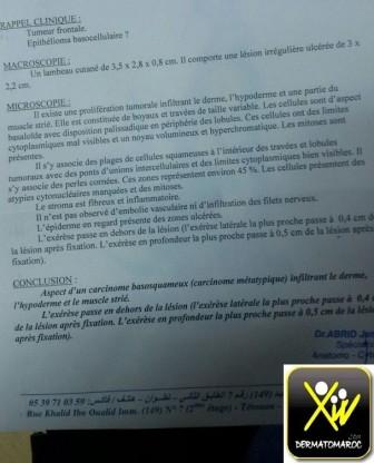 carcinome metatypique  dr begdori (4) (Copier)