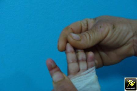 cpd Bulles sero hematoques palmaires multiples et tum thoracique dure chez enfant trois ans. Nfs N et massa osseuse a l echo 24021607 (Copier)