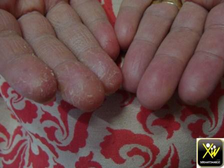 Dca gants dentiste 011114  (1) (Copier)