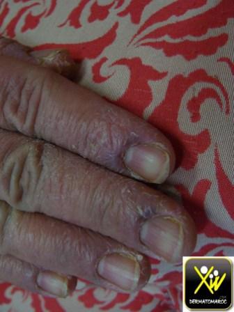 Prurit aux doigts