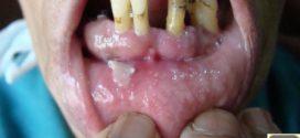 L'ulcération gingivale chronique