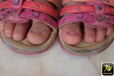 Dystrophie unguéale familiale