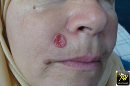 Tumeur perlée