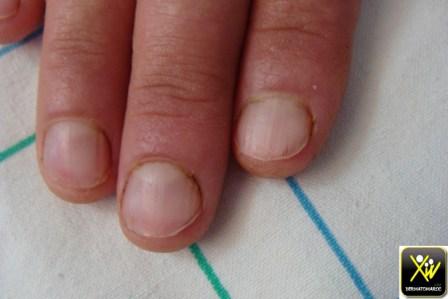 maladie-de-darier-peau-et-ongles-050716-6-copier