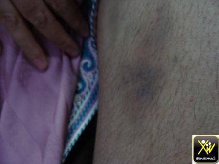 purpura-et-ecchymose-fille-de-30-ap-prise-de-paracetamol-nfs-pq-8000-160615-2-copier