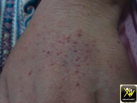 purpura-et-ecchymose-fille-de-30-ap-prise-de-paracetamol-nfs-pq-8000-160615-5-copier