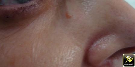 Eruption papulo nodulaire de la face.