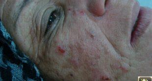 Excoriations du visage et chute des sourcils.
