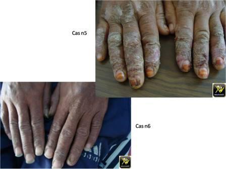 Des mains et des pieds squamo crouteux