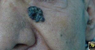 Tumeur pigmentée du visage.