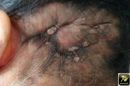 Plaque dure du cuir chevelu
