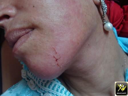 Eczema aigu et ap cortico PO et locale 240614 (2) (Copier)