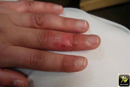 Érythème oedematie, prurigineux et cuisant des doigts