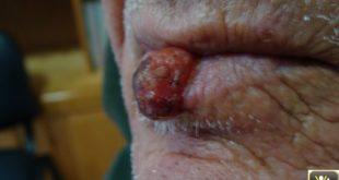 Tumeur de la lèvre et Tabac.