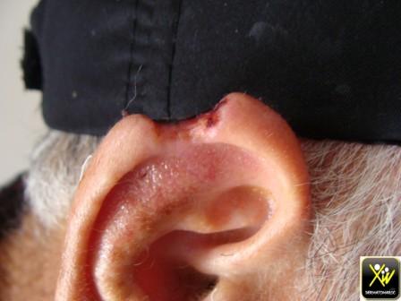 Perte de substance du pavillon de l'oreille.