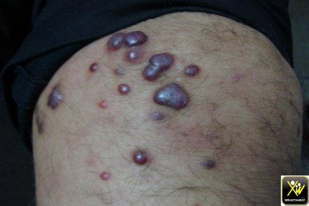 Tumeurs et plaques violacées.