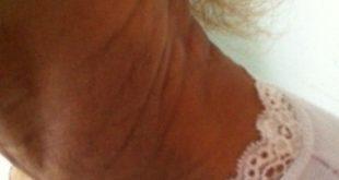 Des plis avec des papules jaunâtres.