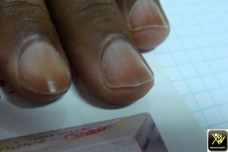 Pigmentation acquise des ongles.