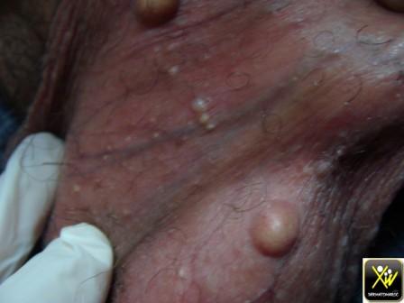 Nodules pierreux au scrotum.