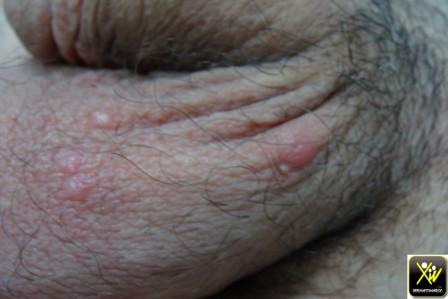 Nodules scrotaux prurigineux.