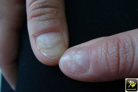 Sillons multiples des ongles.