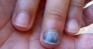 Ongle douloureux