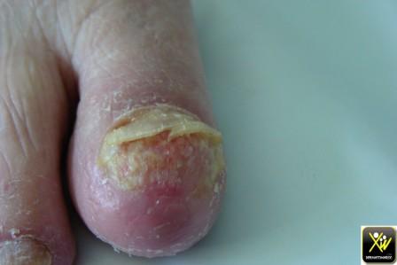 Onycholyse des pouces et des gros orteils