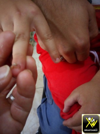 Chute des ongles des doigts.