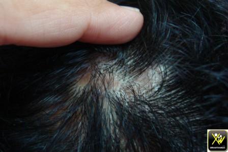 Alopécie cicatricielle.