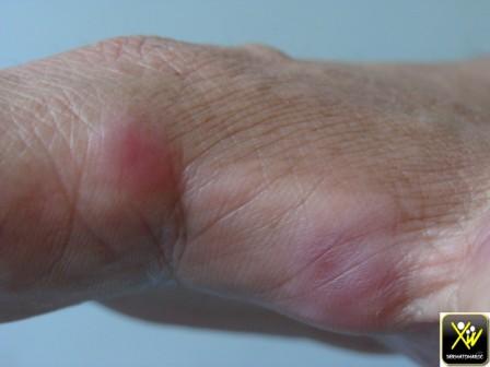 Papules douloureuses avec fièvre et hyperleucocytose.