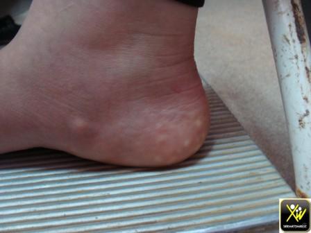Papules du bord interne du pied