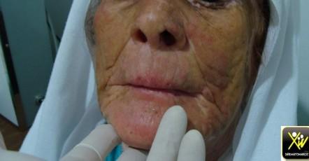 Lésion érythémateuse du visage.