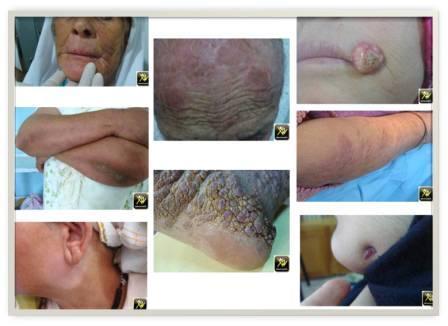 Dermatomaroc N6- 11y