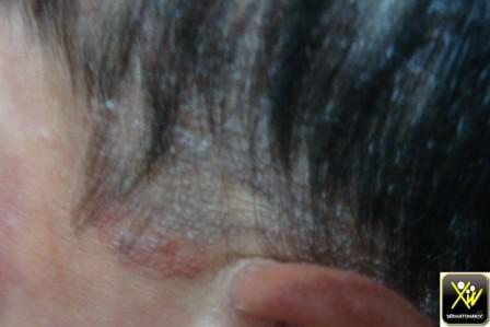Érythème cervico facial et plaques d'alopécie.