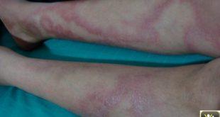 Plaques tumefiees, insensibles avec griffe cubitale et PFP.